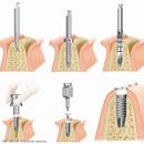 Mise en place de l'implant avec ouverture de la gencive